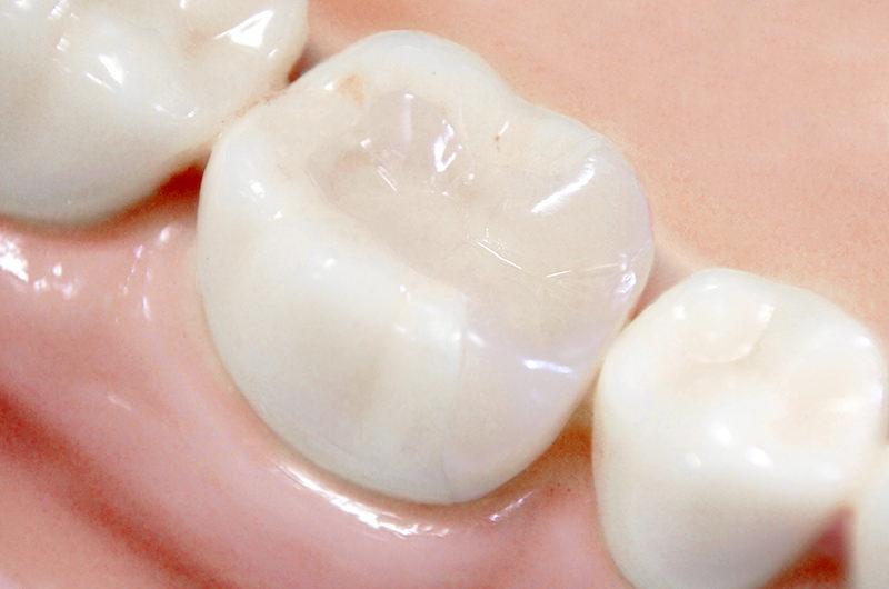 天然歯に近い白さと透明感を手に入れてみませんか?