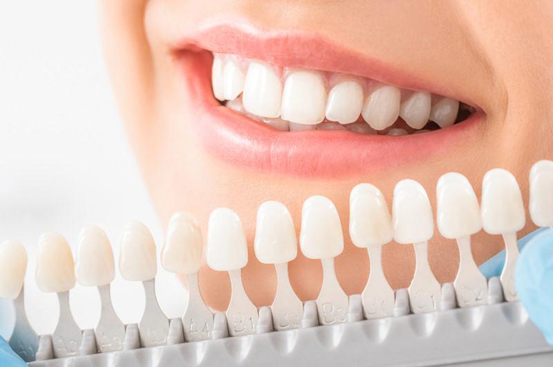 歯の黄ばみ・変色が気になりませんか?